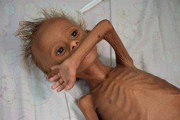 Millions of Yemenis on Verge of Starvation as Saudi Aggression Continues